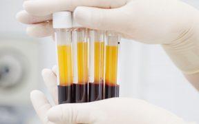 ue-eleva-apuesta-plasma-sanguineo-busca-terapia-contra-covid-19
