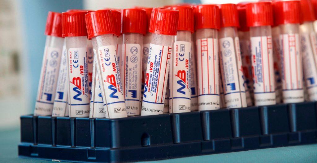 Italia probará mañana su vacuna contra el Covid-19 en 90 voluntarios