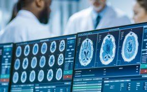 Estudio detecta alteraciones en el cerebro de enfermos leves de Covid-19