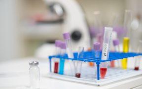Podrían realizarse cinco ensayos de fase 3 de vacunas contra Covid, si Cofepris lo autoriza: Ebrard