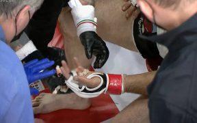 El dedo se desprendió y se alojó en el guante de Pliev. Foto: Captura de video