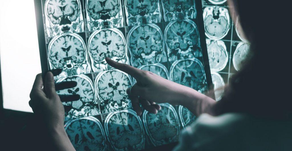 Investigan posible vínculo de la Covid con el mal de Alzheimer