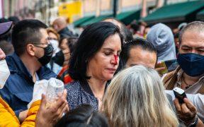 Lía Limón, alcaldesa electa de Álvaro Obregón, denuncia agresión de policías afuera del Congreso de la CDMX