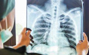 Las muertes por tuberculosis aumentan por primera vez en años debido a la Covid